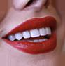 بلیچنگ دندان
