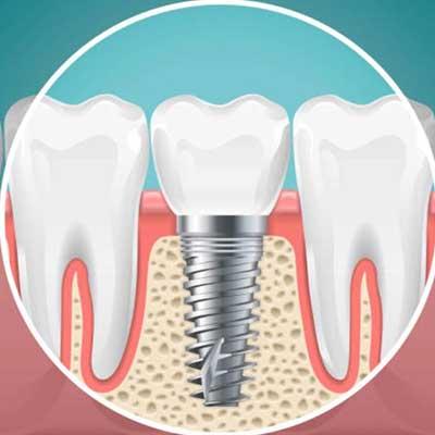 1 4 - مزایا و معایب ایمپلنت دندانی