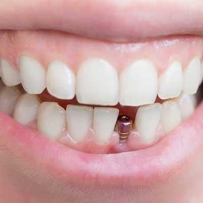 1 - ایمپلنت دندان چیست؟