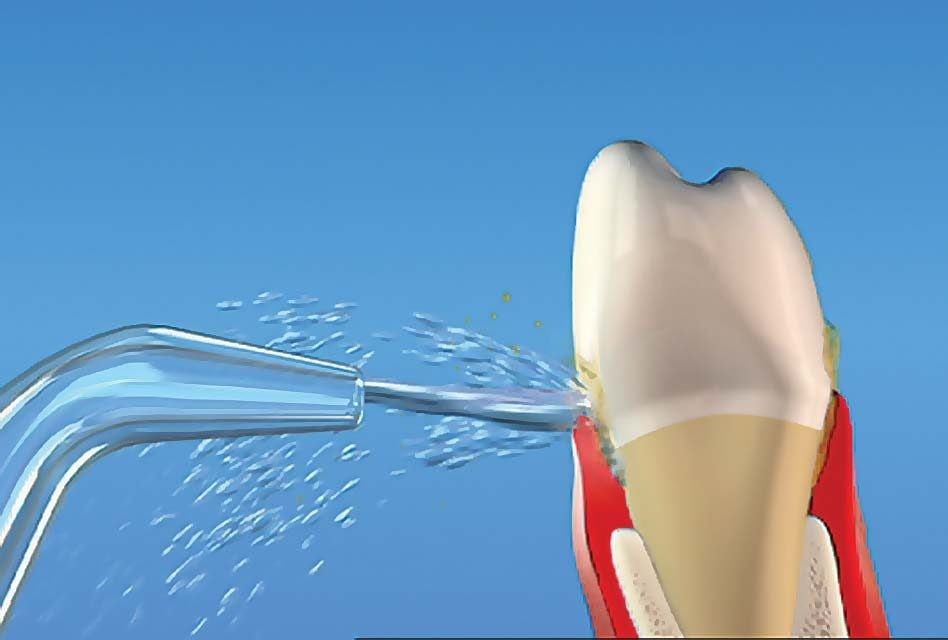 پس از کاشت ایمپلنت دندان