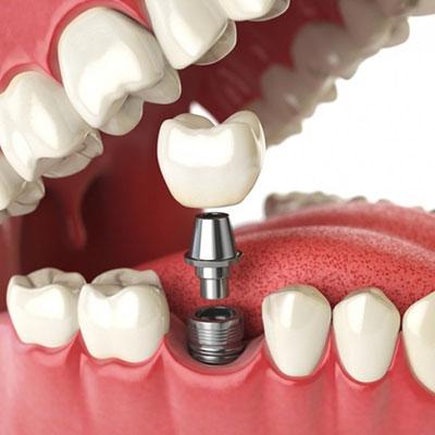 10 - آشنایی با اجزاء ایمپلنت دندان