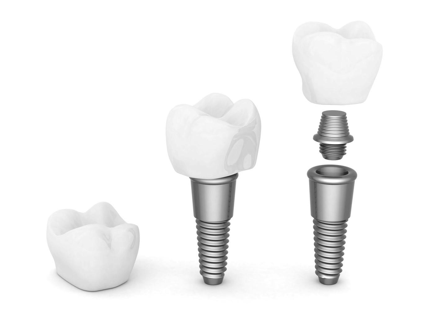 اجزاء ایمپلنت دندان