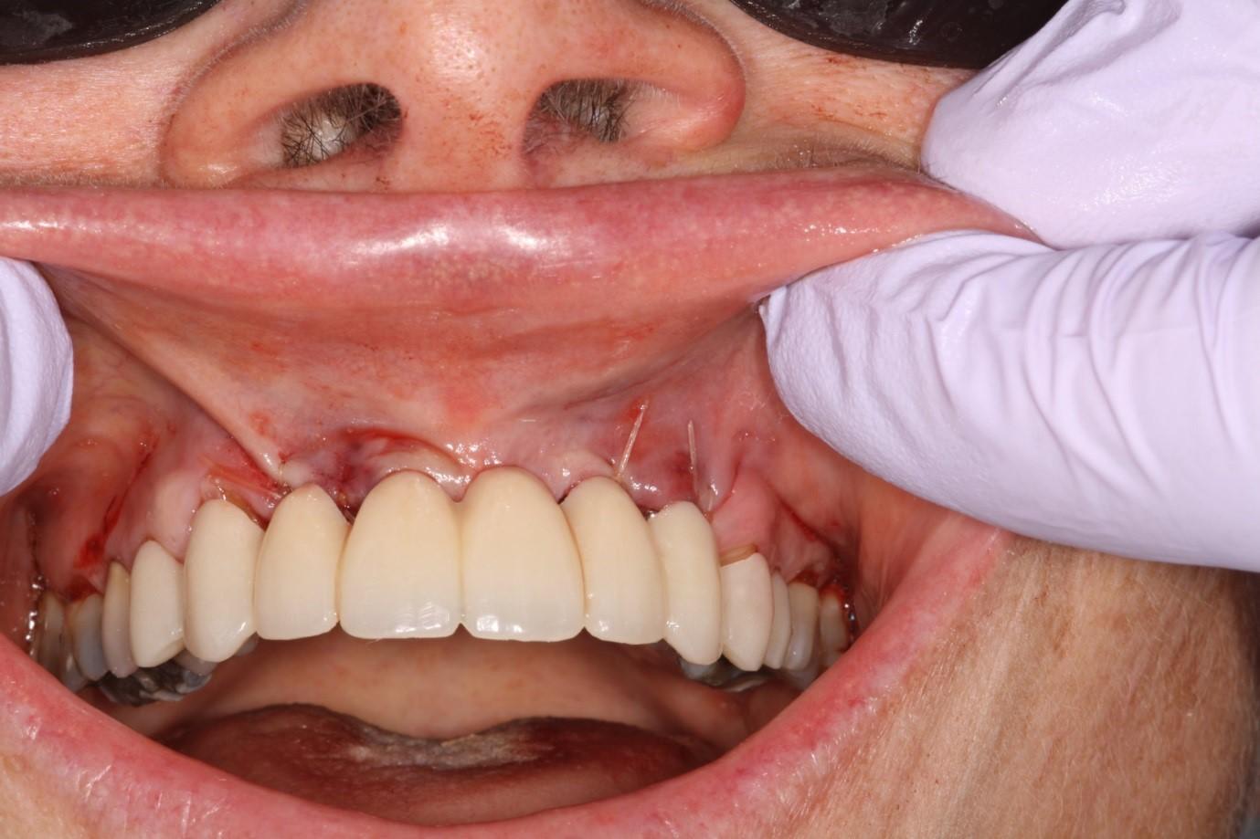 جراحی ایمپلنت دندان