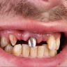 1 96x96 - عوارض ایمپلنت دندان