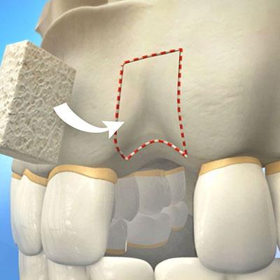 1 - پیوند استخوان فک برای کاشت ایمپلنت دندان