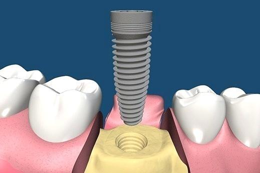 ایمنی کاشت ایمپلنت دندان
