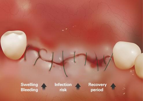 10 - عوامل تهدید کننده ایمپلنت دندان را بشناسیم
