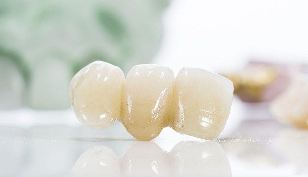 1 1000x576 - بریج دندانی چیست و چگونه عمل می کند؟