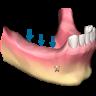 1 96x96 - تحلیل استخوان اطراف ایمپلنت