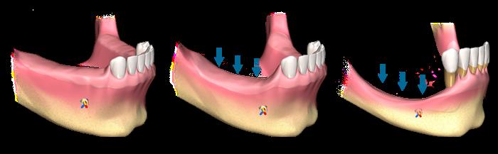 1 - تحلیل استخوان اطراف ایمپلنت