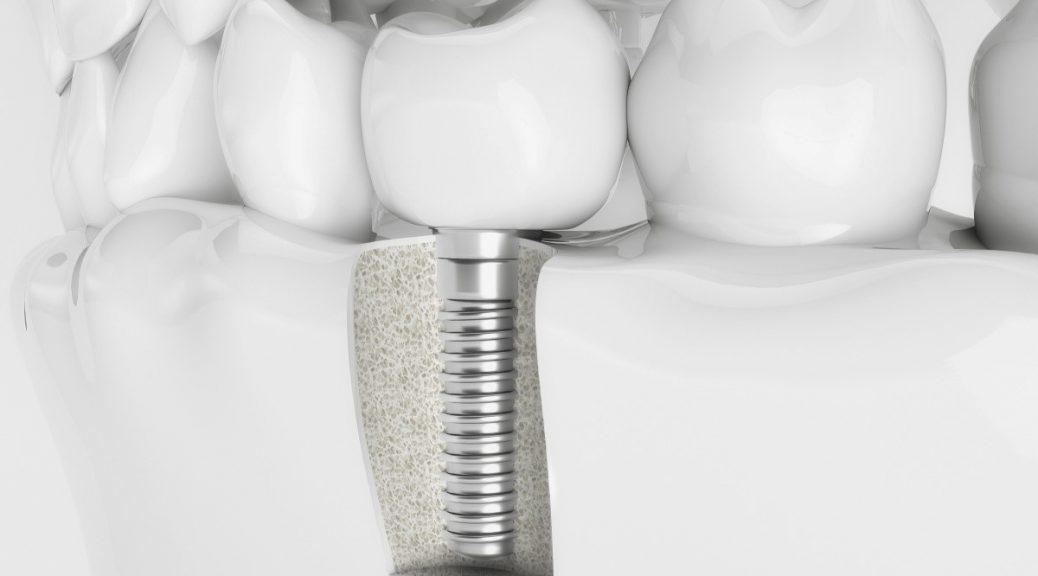 24 1038x576 - ایمپلنت دندان یا بریج دندانی؟ کدام بهتر است؟