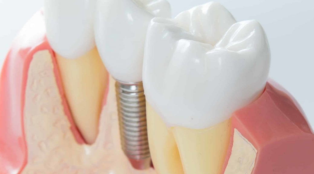 16 1038x576 - دندان مصنوعی یا ایمپلنت؟